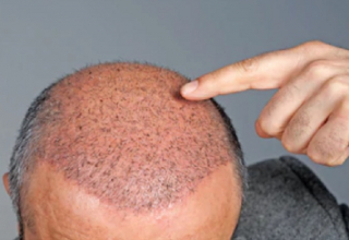 Revolutionise The Hair Transplant Procedure